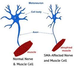spinal muscular atrophy2
